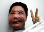 Foto China's eerste patiënt met gezichtstransplantatie gestorven