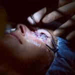 Foto Nieuwe ooglaser Spaarne Ziekenhuis
