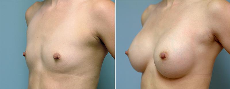 Foto Registratie voor elke borstprothese
