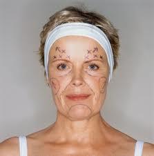 Foto 'Plastische chirurgie maakt je niet (veel) mooier'