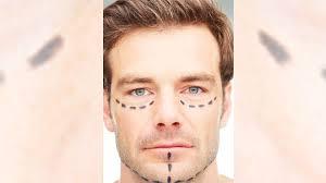 Foto De hippe man wil een baard; het aantal baardtransplantaties neemt toe