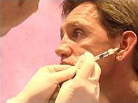 Foto 25% van Engelse mannen overweegt cosmetische chirurgie