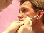 Foto Ook mannen raken verslingerd aan Botox