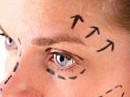 Video Mini facelift, ooglidcorrectie en spataderbehandeling