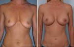 Video Borstvergroting, maculadegeneratie, huidbehandeling bij acne en Prescan