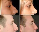 Video Gewoon mooier: neuscorrectie en injectable in het gezicht